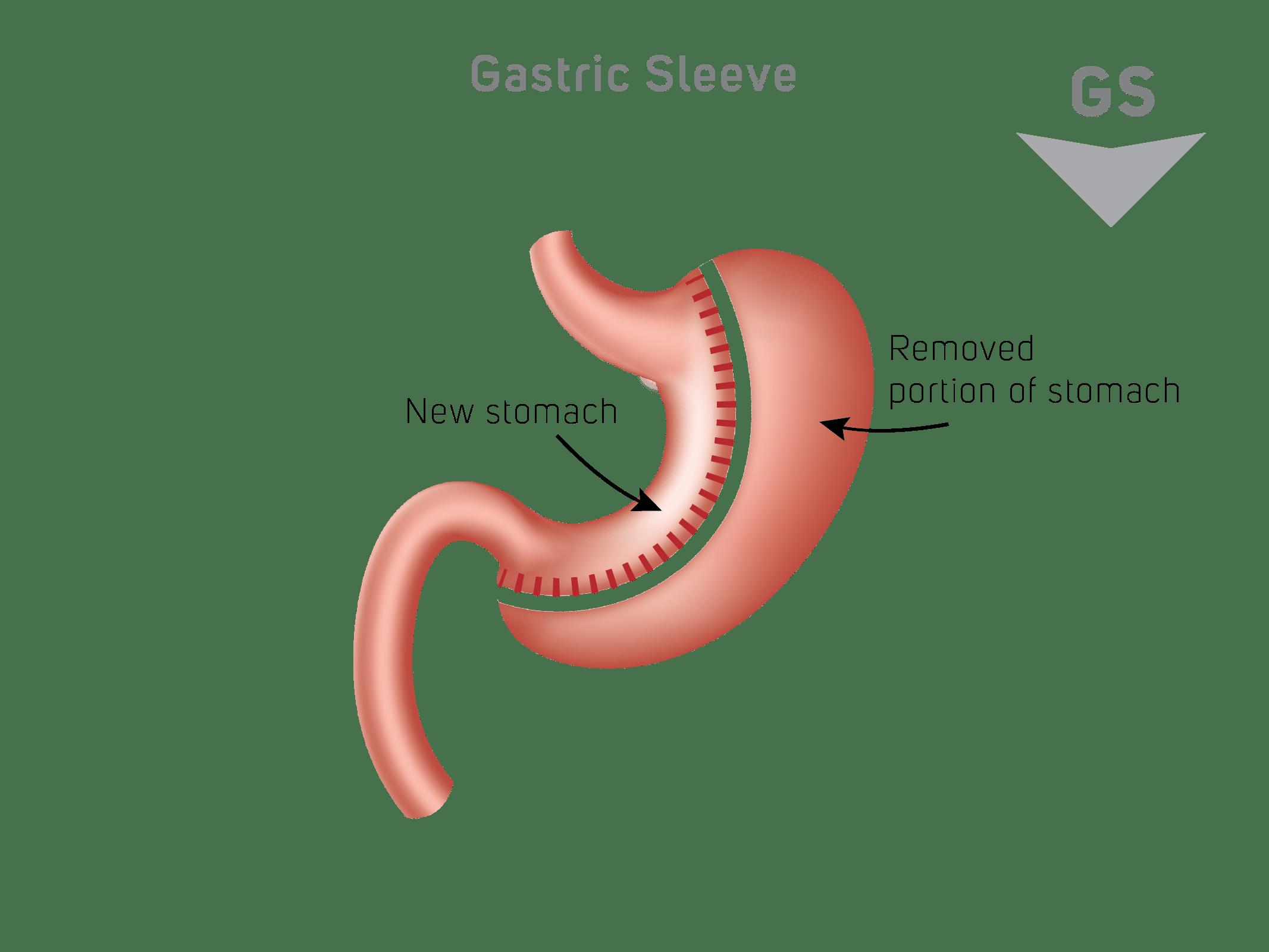 gastric sleeve schema