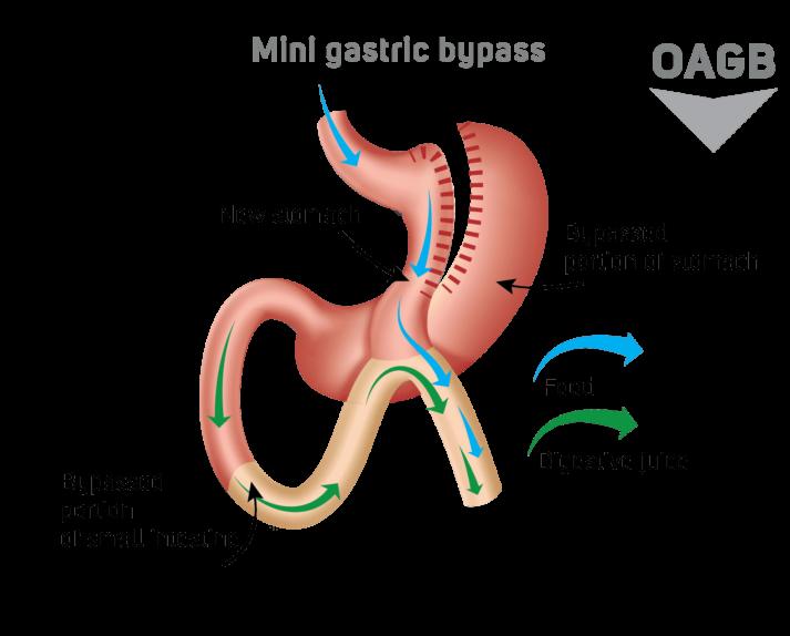 mini gastric bypass schema
